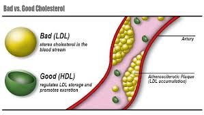 LDL cholesterol and heart disease