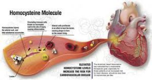 homocysteine levels and heart disease