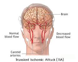 Symptoms of a mini stroke - loss of blood to brain