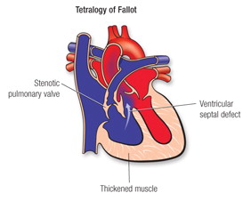 Tetralogy of Fallot - Congenital Heart Defects